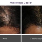 mesoterapia_capilar