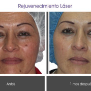 rejuvenecimiento_laser2