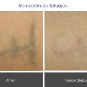 remocion_tatuajes1