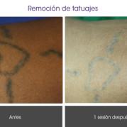remocion_tatuajes2