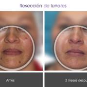 reseccion_lunares1