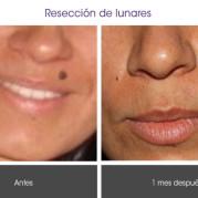 reseccion_lunares2