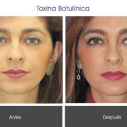toxina_botulinica1