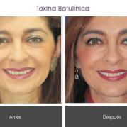 toxina_botulinica2