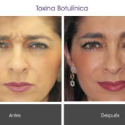 toxina_botulinica3