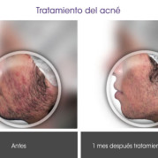 tratamiento_acne1