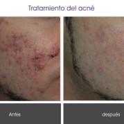 tratamiento_acne2
