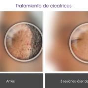 tratamiento_cicatrices1