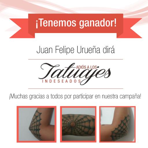 Adiós Tatuajes Indeseados