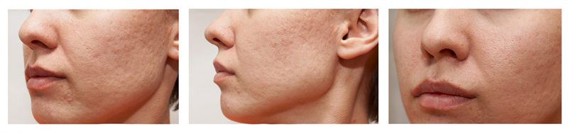 laser co2 para cicatrices de acne