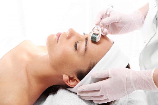 microagujas para tratamiento del acné