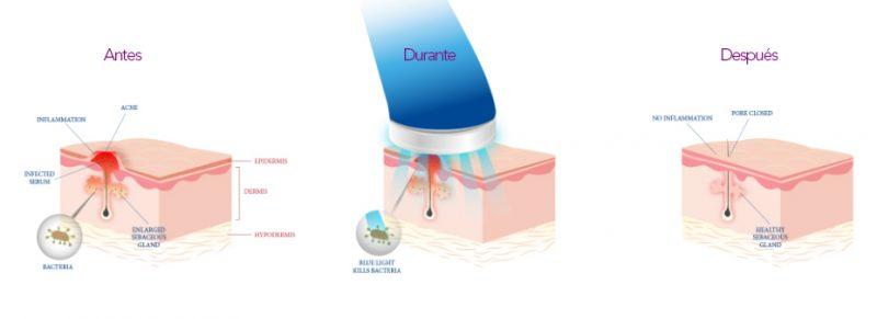 terapia-antiinflamatoria-con-led-dermosalud-4-jpg