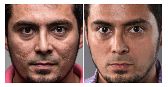 terapia antiinflamotia con led para acné