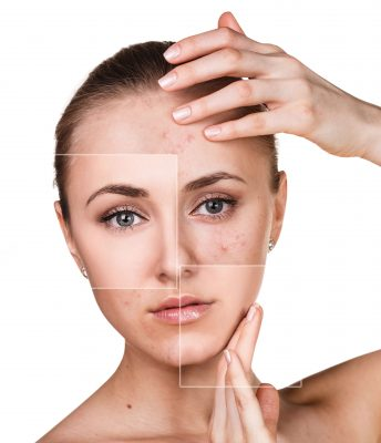 tratamientos acne