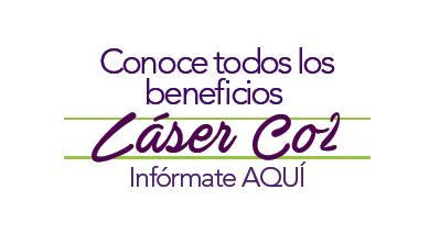 copy noviembre laser co2