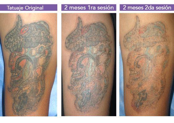 Eliminacion de tatuajes 2