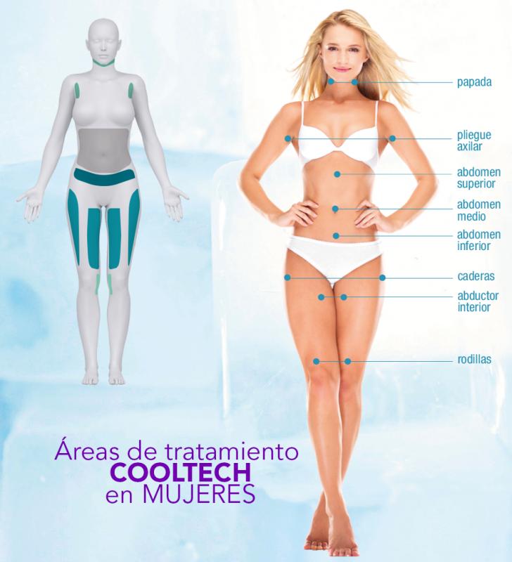 Areas de tratamiento mujer