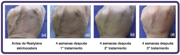 dermosalud-hidratacion-piel-2