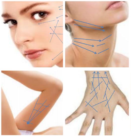tratamientos-hilo-tensores-tratamientos-para-el-acne-dermosalud-colombia - copia