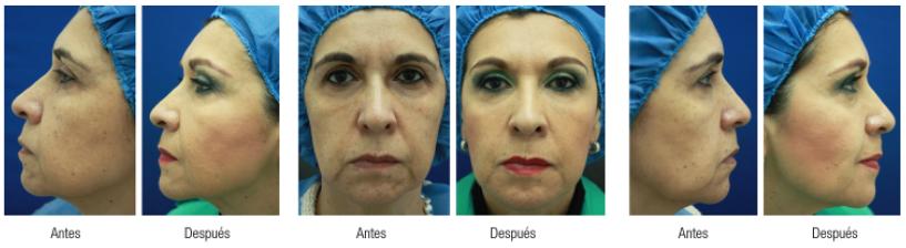 tratamientos-hilo-tensores-tratamientos-para-el-acne-dermosalud-colombia-testimonio