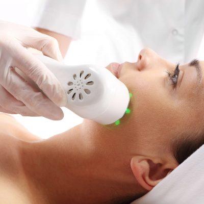 Terapia fotodinamica Acné