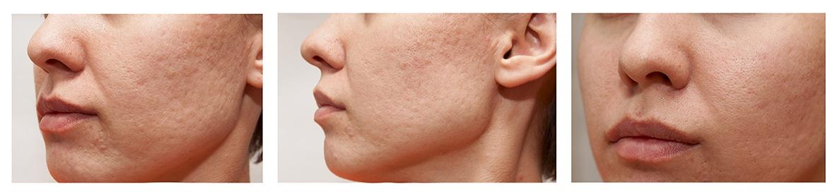 laser co2 para cicatrices de acne