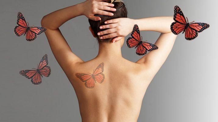 Borrar Tatuajes Laser Q Switch