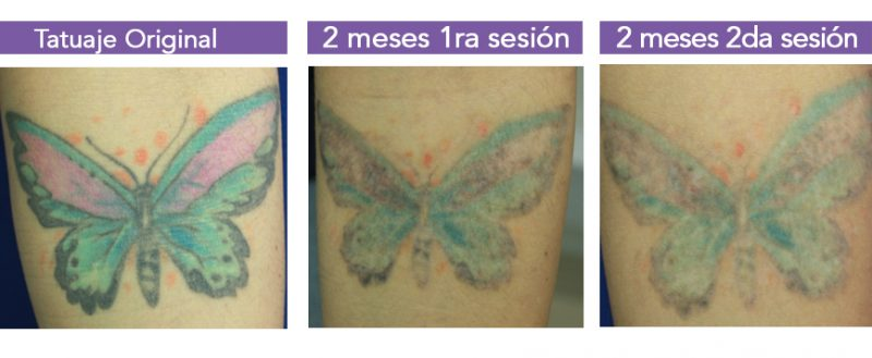 Eliminacion de tatuajes 3