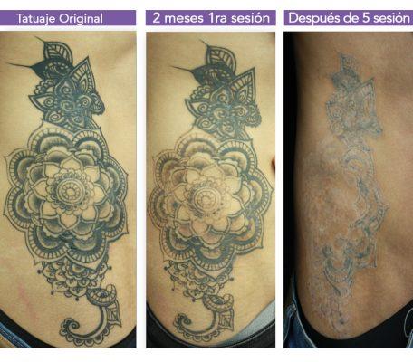 Eliminación de tatuajes profesionales